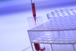Case Study: Zoho CRM enables biotech company to streamline sales process and improve reporting